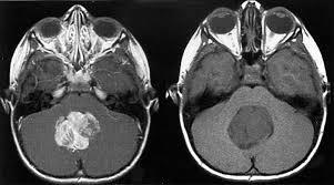 Risultati immagini per tumore cervello