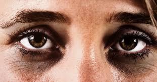 Dark <b>circles</b> under the eyes: Causes and treatments